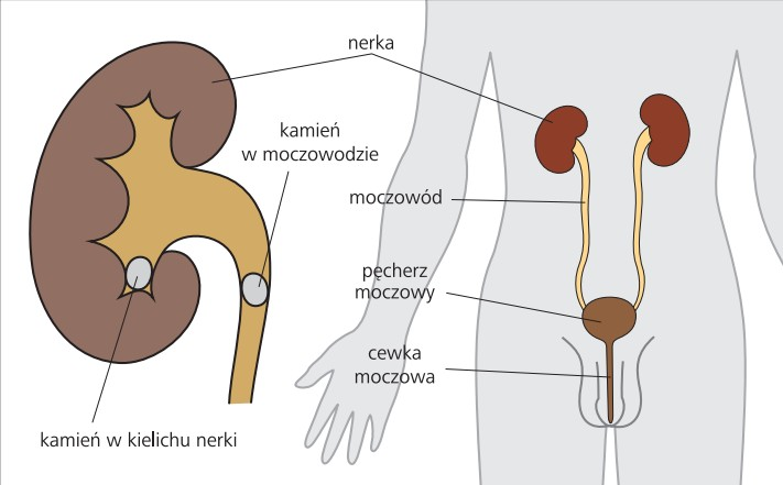 kamica_nerkowa