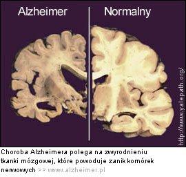 mózg_chory_i_mózg_zdrowy_w_chorobie_Alzheimera