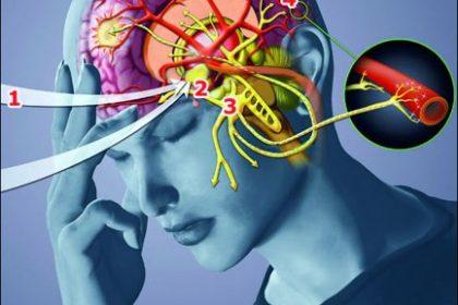 rozprzestrzenianie_się_migreny_w_mózgu