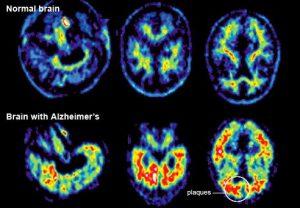 zdjęcia_tomografu_komputerowego_w_chorobie_Alzheimera