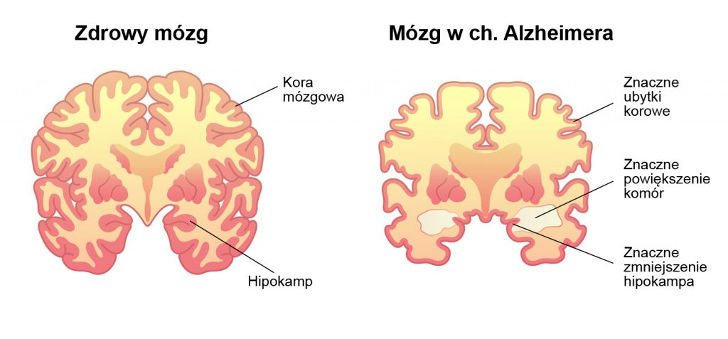 zdrowy_mózg_i_chory_mózg