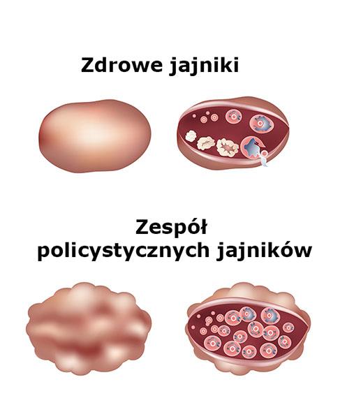zespół_policystycznych_jajników