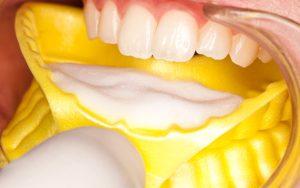 fluoryzacja-zębów