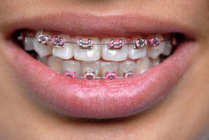aparat_ortodontyczny