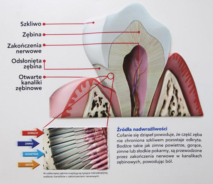 nadwrażliwość_zębów