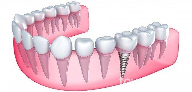implanty_zębowe