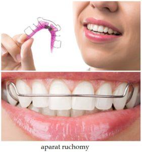 aparaty_ortodontyczne