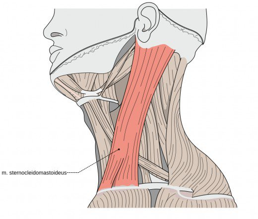 kręcz szyi jest spowodowany wadą mięśnia mostkowo- obojczykowo – sutkowego