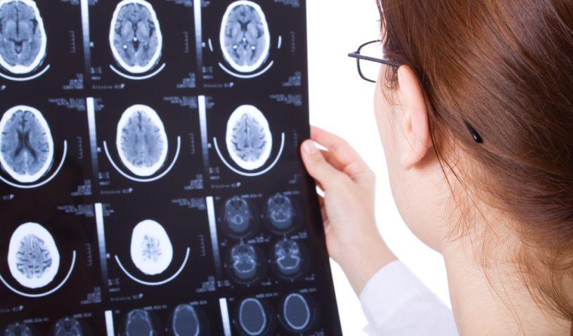 Choroba Creutzfeldta-Jakoba głownie charakteryzuje się otępieniem