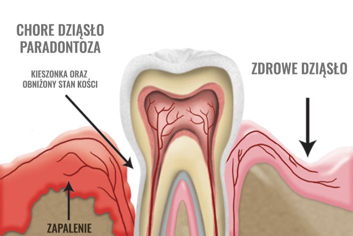 zapalenie przyzębia może prowadzić do utraty zębów