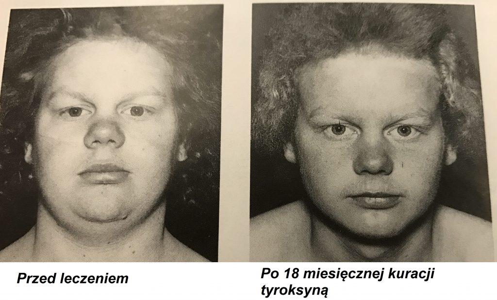 obrzęk śluzowaty (myxoedema), obejmuje głównie twarz i szyję, dla którego charakterystyczny jest brak zagłębienia na skórze po uciśnięciu.