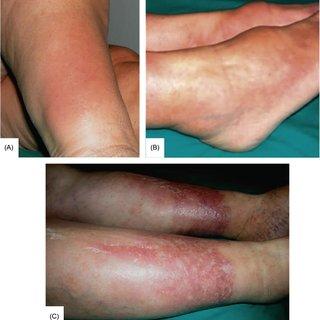 obrzęk śluzowaty jest medycznie określany  zgrubieniem, skóry i tkanki podskórnej, poprzez gromadzenie się w przestrzeni międzykomórkowej substancji o wyglądzie śluzu