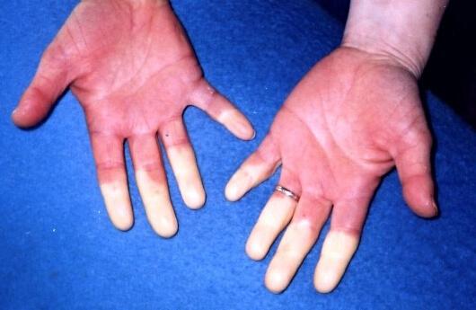Objaw Raynauda - nagle pojawiające się sinienie kończyn