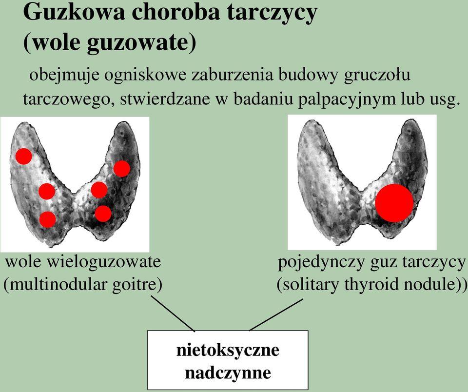 Guzki tarczycy, które mają postać wola inaczej nazywane są mnogimi. W zależności od tego ile hormonu wytwarzają, nie muszą być niebezpieczne (jeśli wytwarzają odpowiednią ilość hormonów są niegroźne)