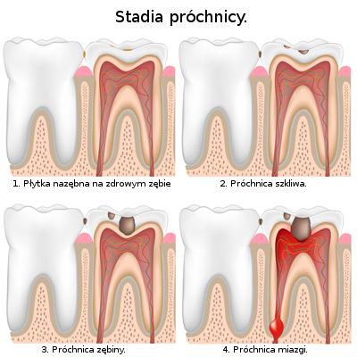 Najwcześniejszym symptomem próchnicy zębów mlecznyh jest kredowobiała zmiana, która jest dostrzegalna na gladkiej powierzchni zęba