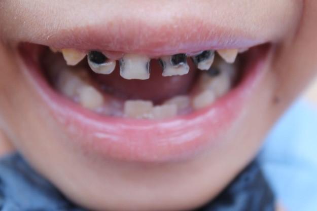 Leczenie próchnicy zębów mlecznych zależy od stopnia postępu choroby.