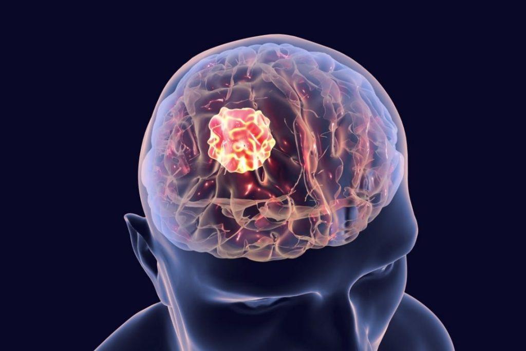 Glejaki w terminologii medycznej należą do grupy nowotworów ośrodkowego układu nerwowego, które mają swój początek w komórkach glejowych. Glejaki mają różne postacie w obrębie komórek mózgu
