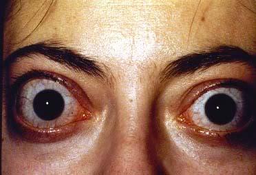 Typowymi objawami ocznymi chorób tarczycy są zmiany w okolicach powiek (oprócz oczywistych symptomów jakimi są osiowe objawy, które pojawiają się w przebiegu niedoczynności lub nadczynności tarczycy).