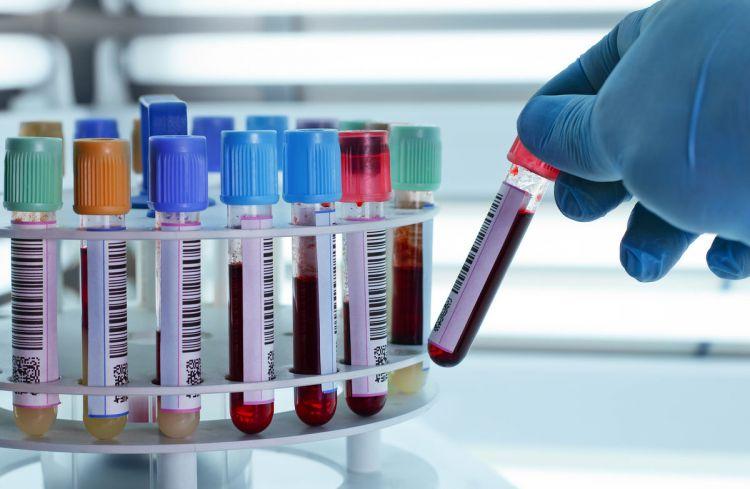 Badania peptydu C stosuje się w celu monitorowania efektywności leczenia wyspiaka czyli guza trzustki, który przyczynia się do niekontrolowanego produkowania insuliny i peptydu C.