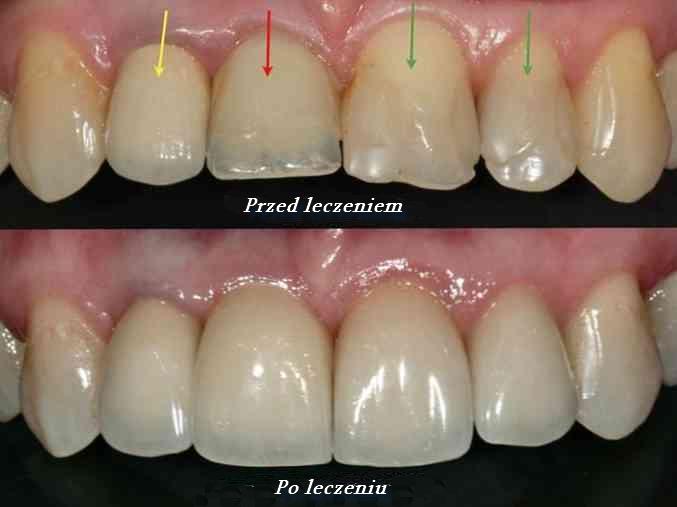 Leczenie dentystyczne hipoplazji opiera się na kilku procesach. Dentysta może zalecić lakowanie zębów (czyli uszczelnienie bruzd), fluoryzację (pokrywanie powierzchni zębów preparatami zawierającymi w swym składzie fluor o określonym stężeniu)