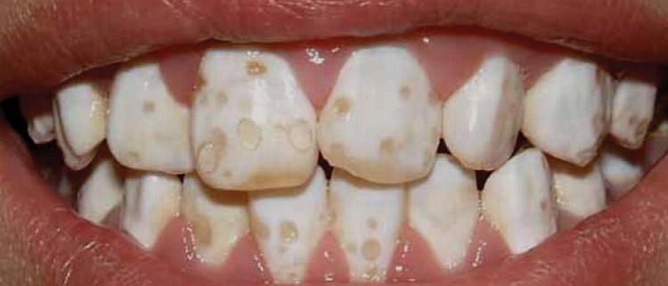 Rzadziej można ją spotkać u dzieci. Zazwyczaj uwidacznia się na zębach stałych. Ryzyko powstania hipoplazji zwiększają takie elementy jak: wady zgryzu, choroby przyzębia oraz wykształcenie zębów o nieprawidłowym kształcie. Oprócz tego hipoplazja może być wynikiem: